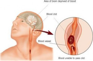 AVC accident vasculaire cérébral