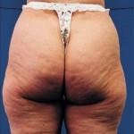 Cellulite adipeuse