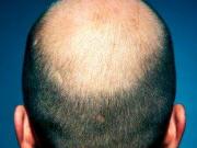 calvitie précoce et cancer de la prostate