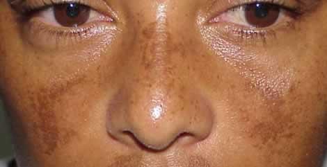 Le masque de grossesse