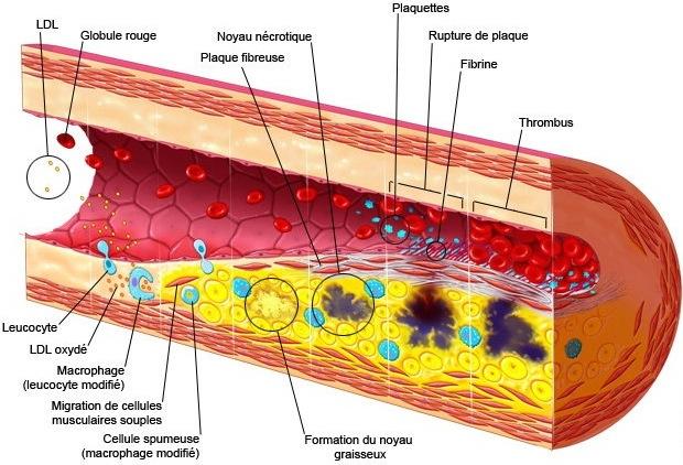 artériosclérose et athérosclérose