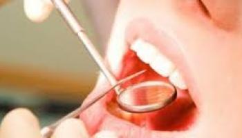 conseils après une extraction dentaire