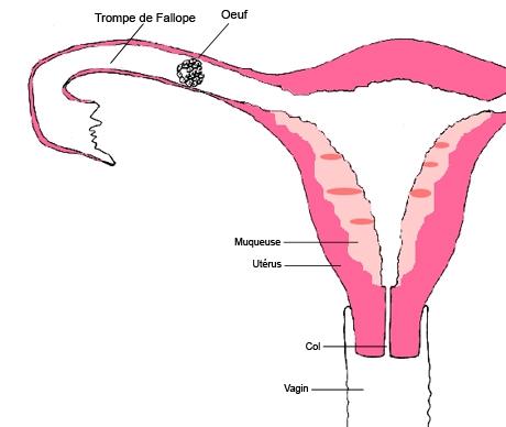 grossesse extra uterine