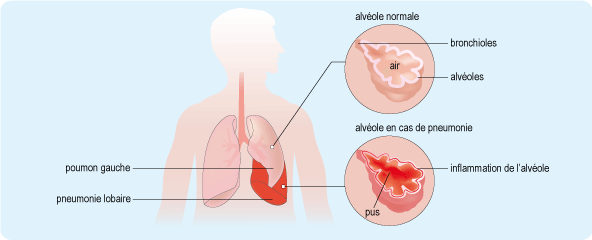 Pneumonie aiguë frontale
