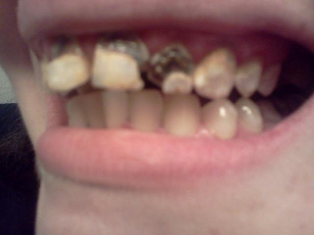 horribles dents