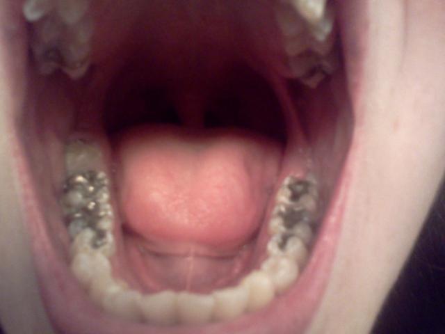 pourquoi se laver les dents (3)