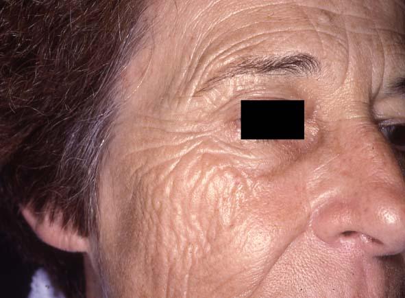 Effets du tabac sur la peau